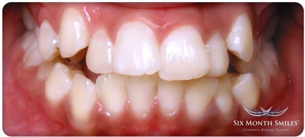 Six Month Smiles® Braces in Shrewsbury & Stafford | Oracle